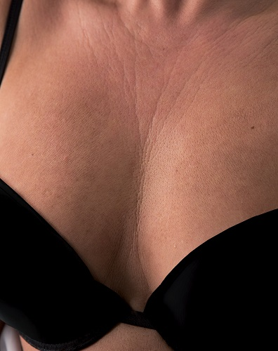 Viscoderm Decolletage - Before